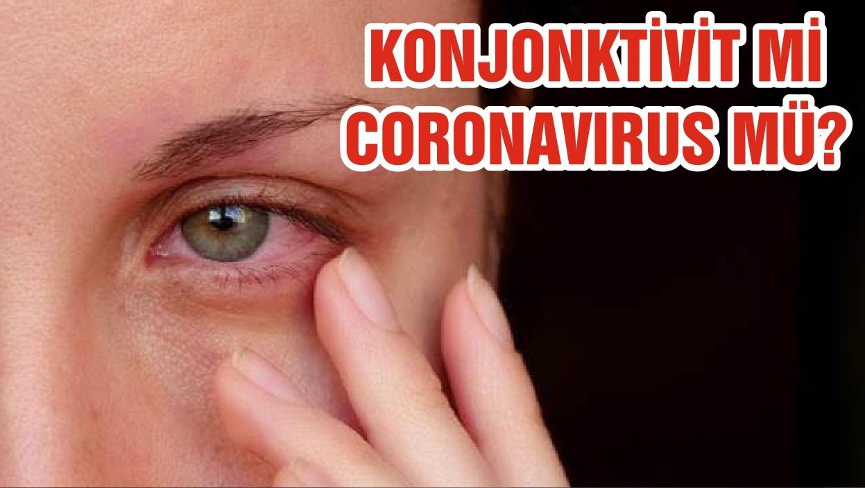 KONJONKTİVİT Mİ CORONAVIRUS MÜ?
